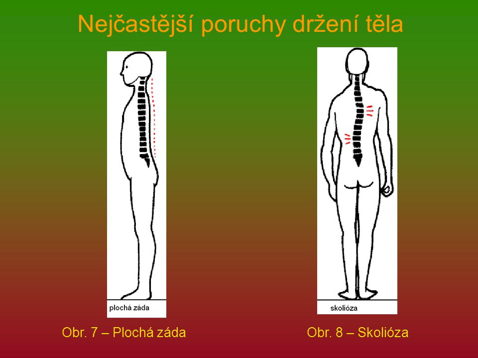 Nejčastější poruchy držení těla