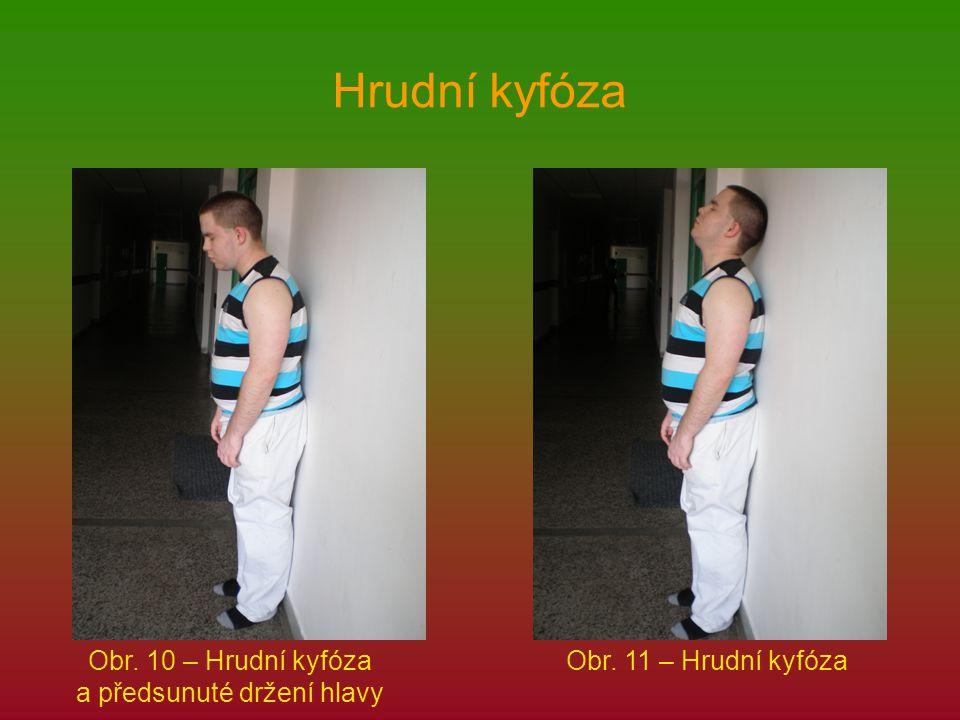 Obr. 10 – Hrudní kyfóza a předsunuté držení hlavy