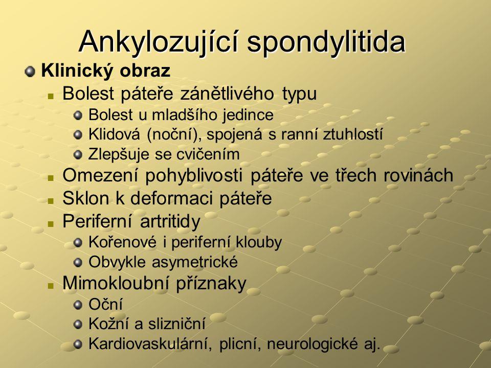 Ankylozující spondylitida