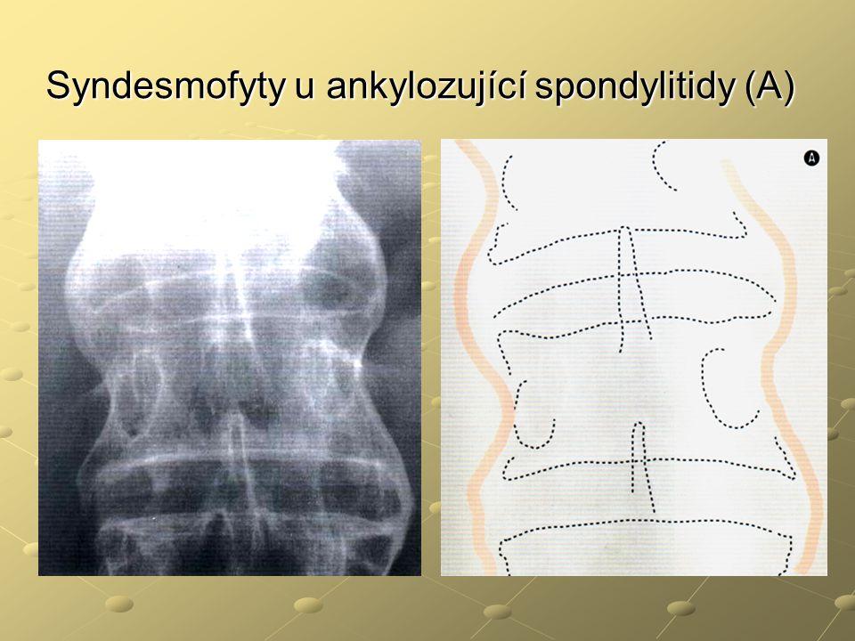 Syndesmofyty u ankylozující spondylitidy (A)