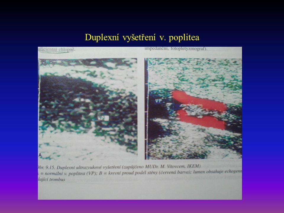 Duplexní vyšetření v. poplitea