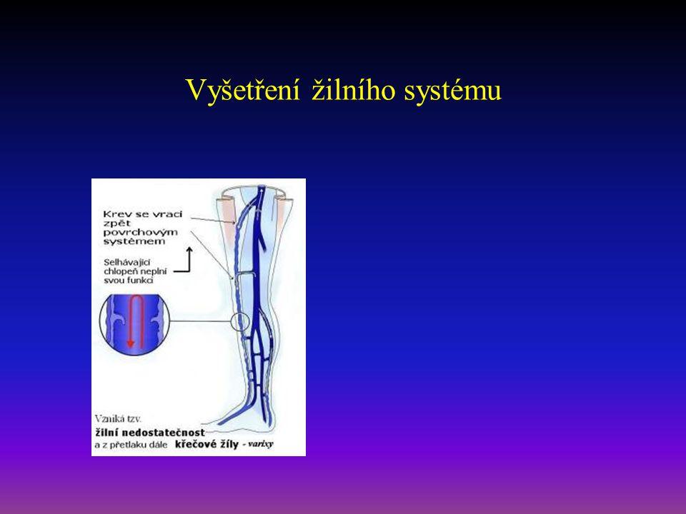 Vyšetření žilního systému