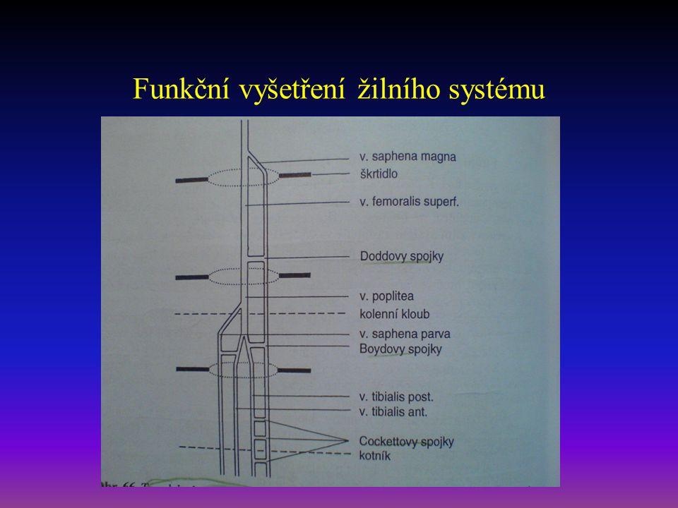 Funkční vyšetření žilního systému