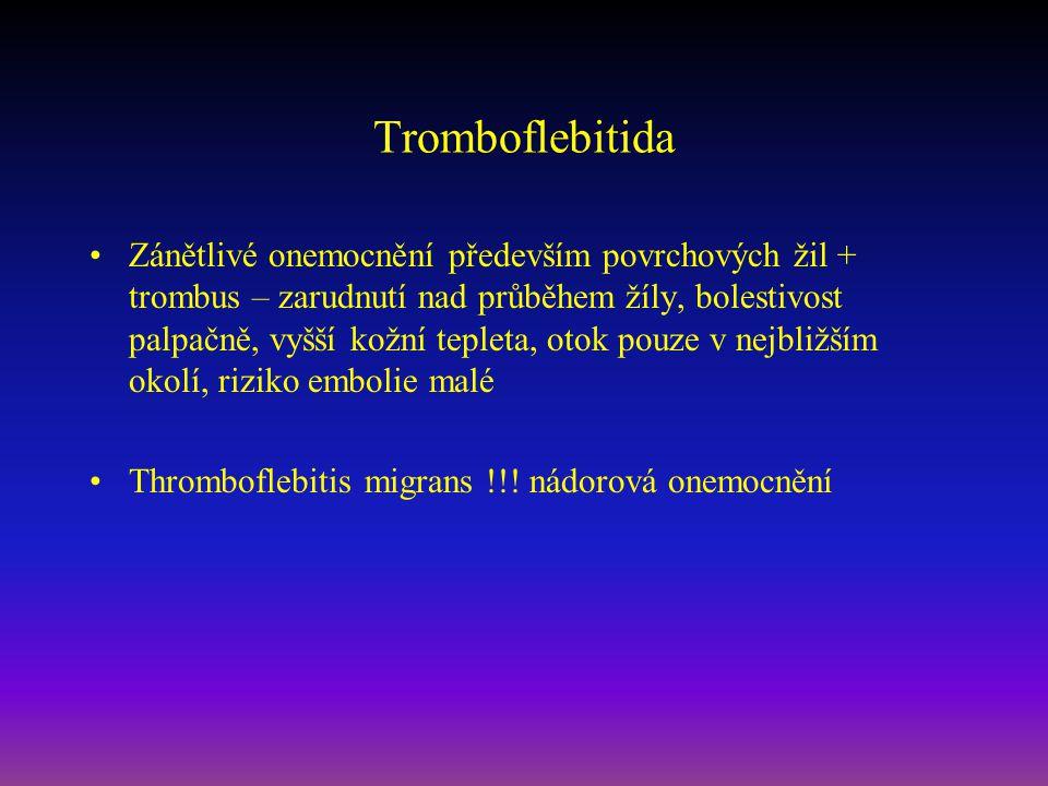 Tromboflebitida