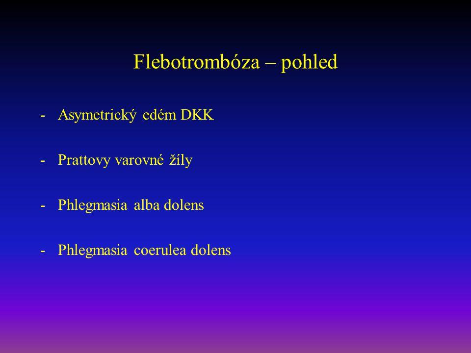 Flebotrombóza – pohled
