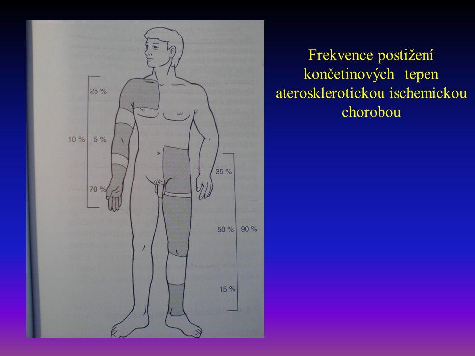 Frekvence postižení končetinových tepen aterosklerotickou ischemickou chorobou