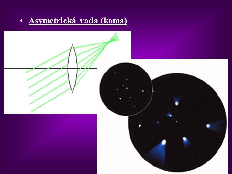 Asymetrická vada (koma)