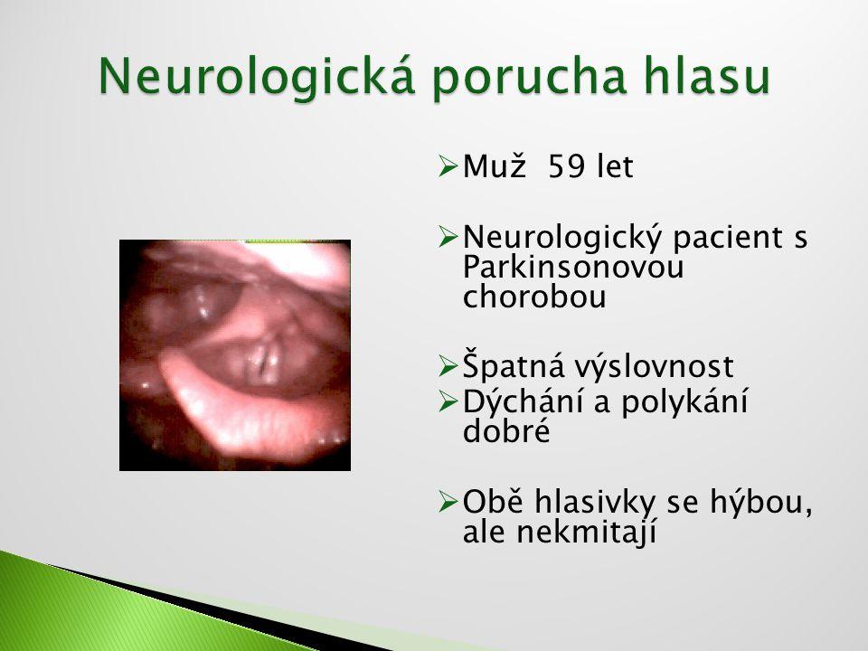 Neurologická porucha hlasu