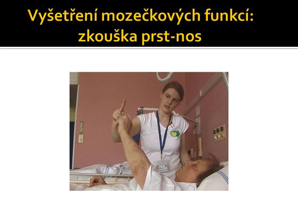 Vyšetření mozečkových funkcí: zkouška prst-nos