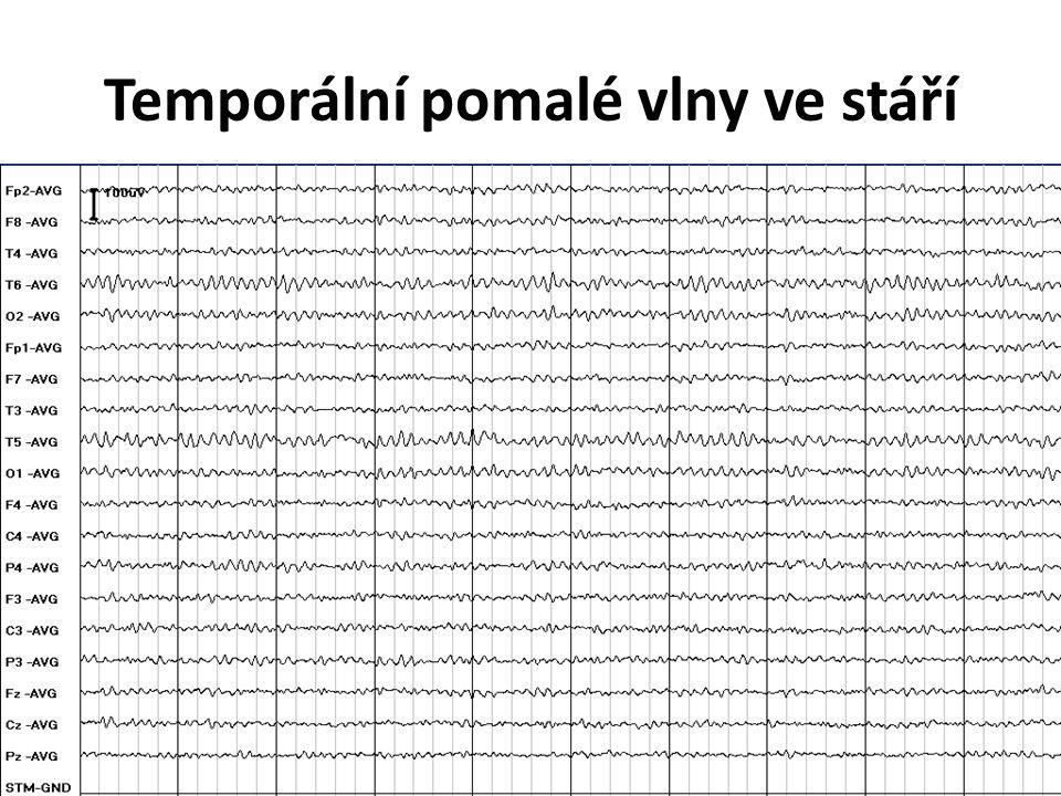 Temporální pomalé vlny ve stáří