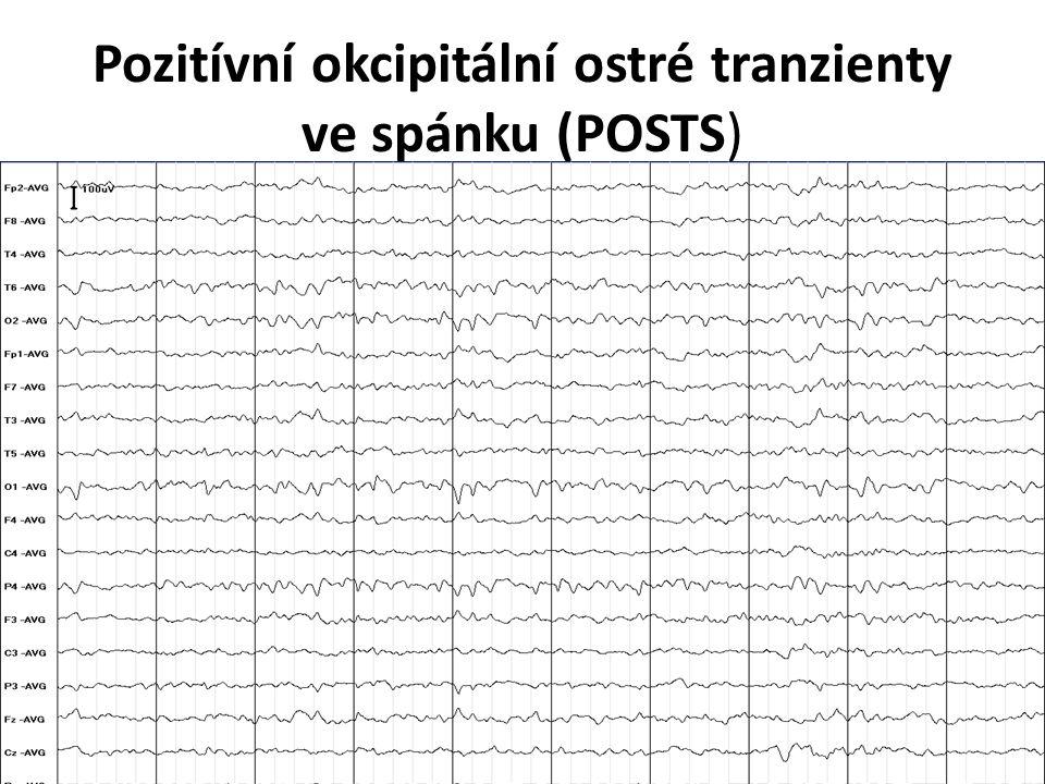 Pozitívní okcipitální ostré tranzienty ve spánku (POSTS)