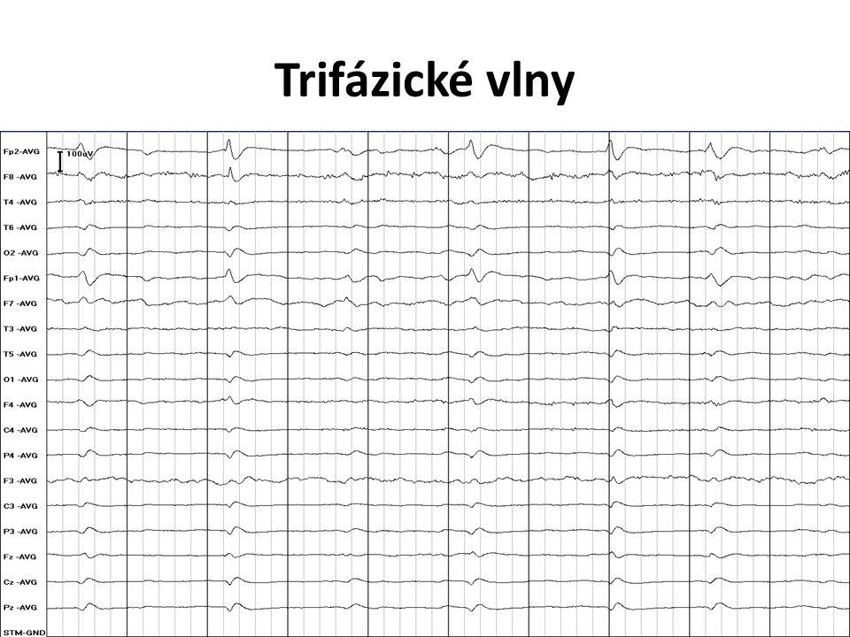 Trifázické vlny