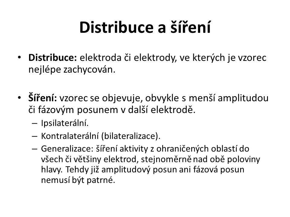 Distribuce a šíření Distribuce: elektroda či elektrody, ve kterých je vzorec nejlépe zachycován.