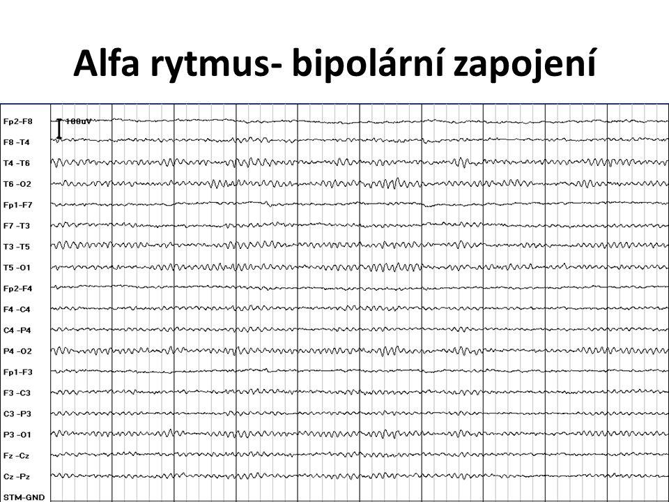 Alfa rytmus- bipolární zapojení