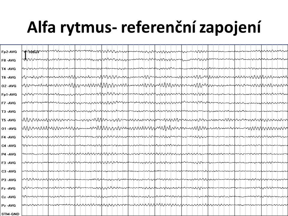 Alfa rytmus- referenční zapojení