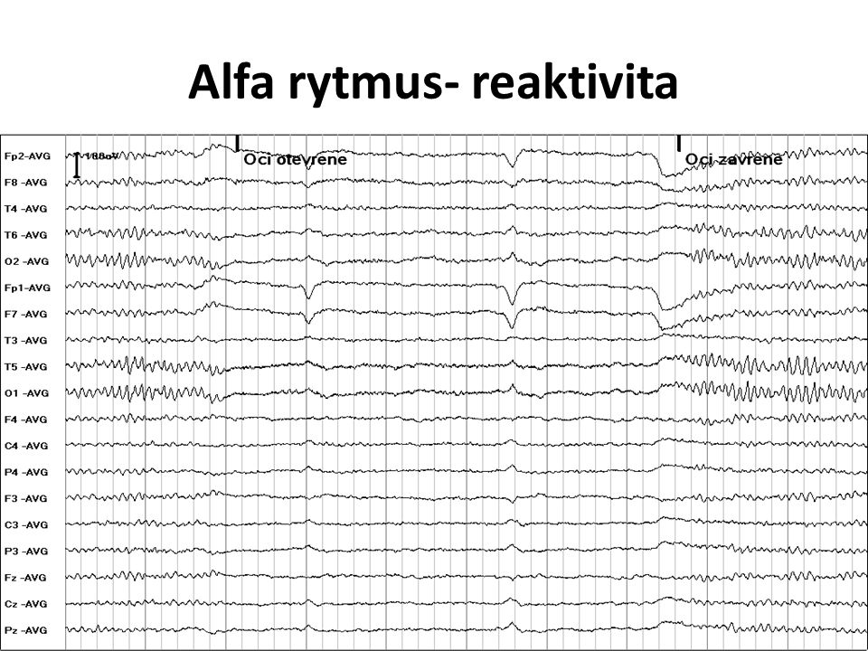 Alfa rytmus- reaktivita