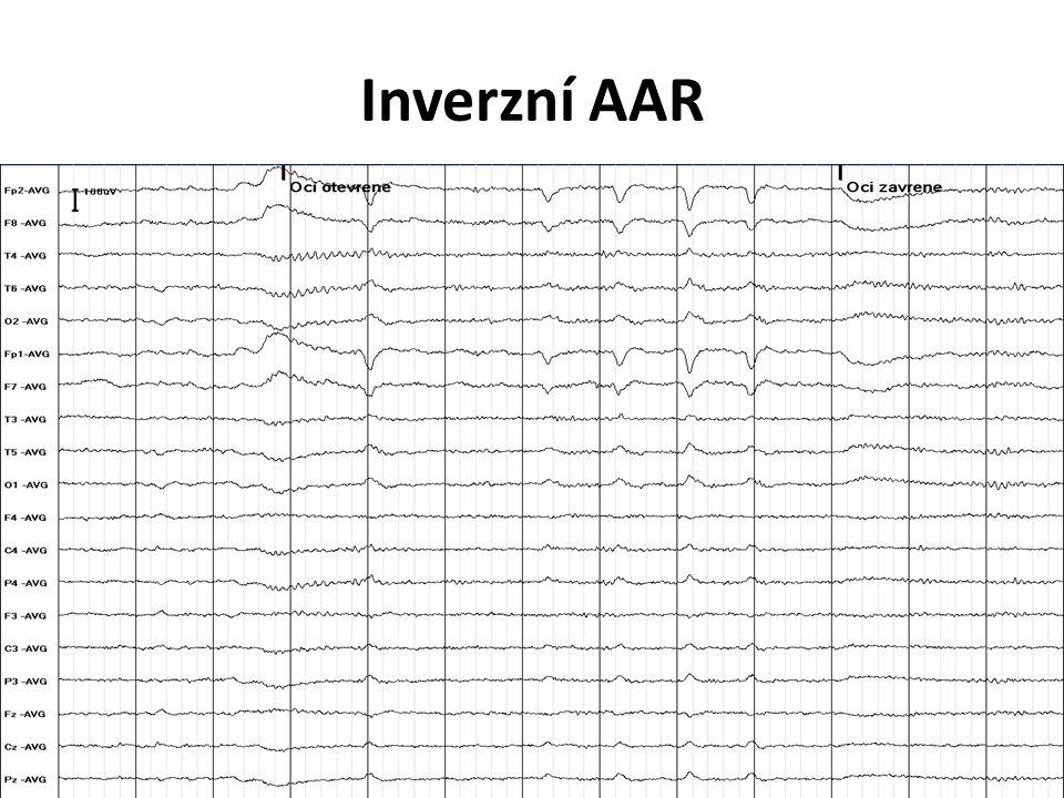 Inverzní AAR