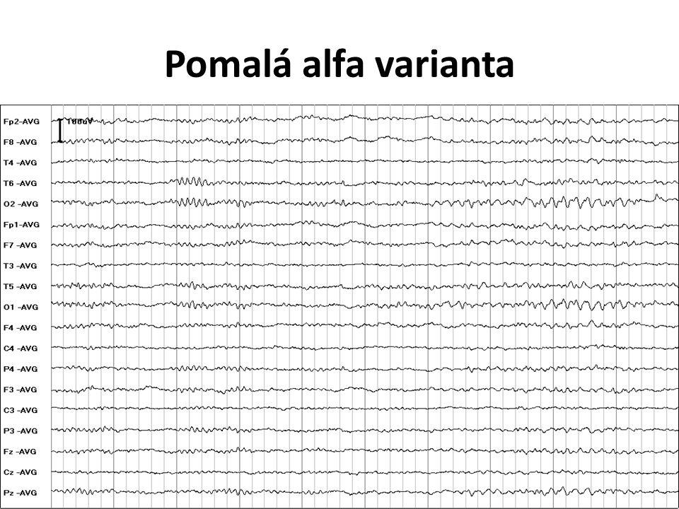 Pomalá alfa varianta V levé části alfa rytmus, v pravé pomalá alfa varianta.