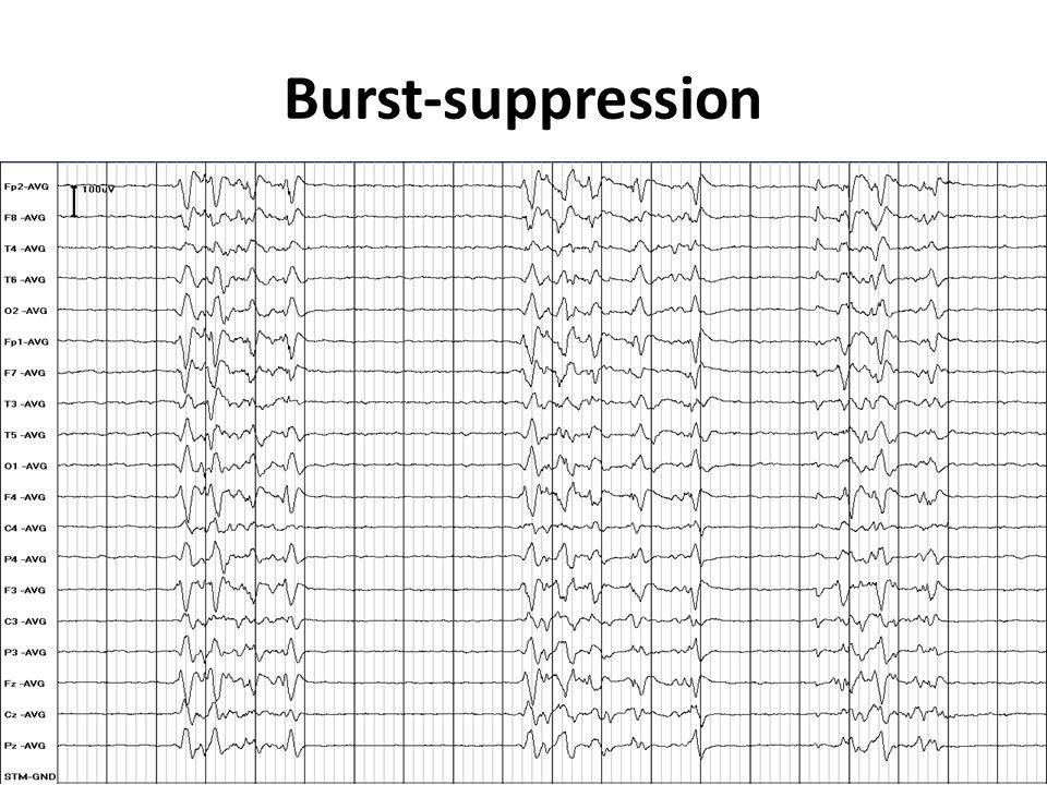Burst-suppression