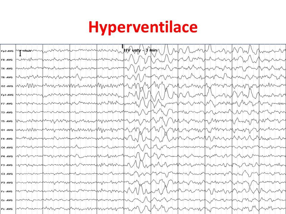 Hyperventilace Reakce na hyperventilaci