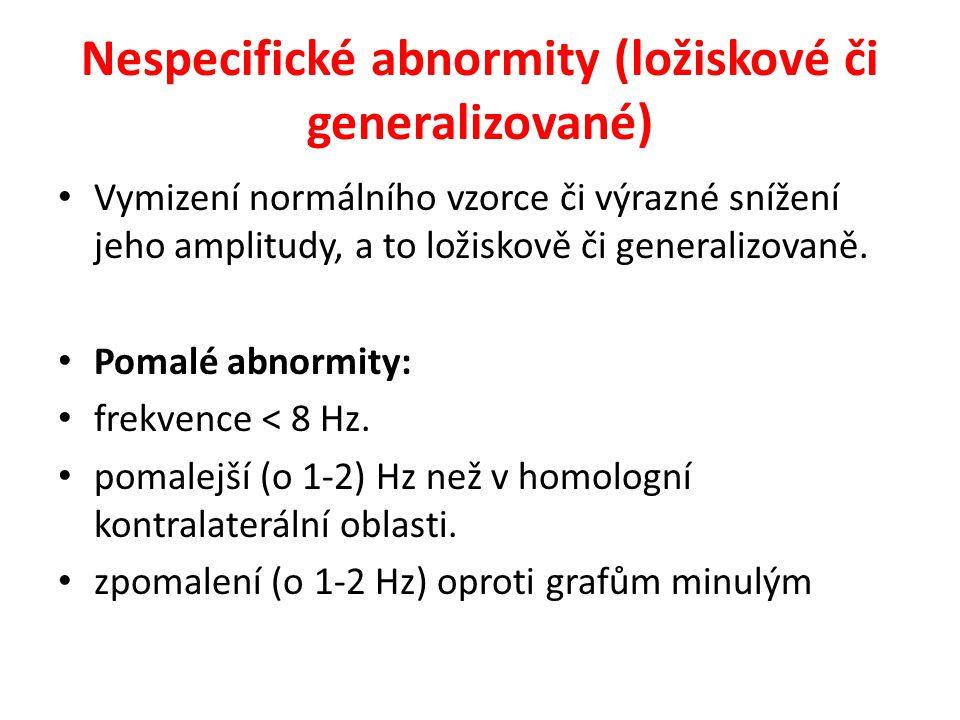 Nespecifické abnormity (ložiskové či generalizované)