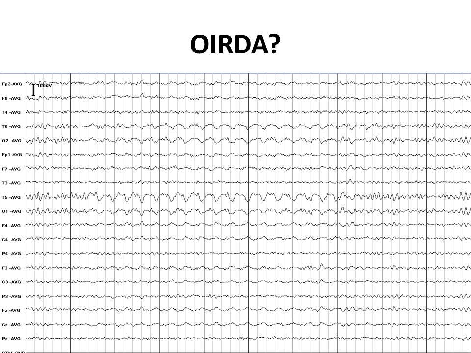 OIRDA