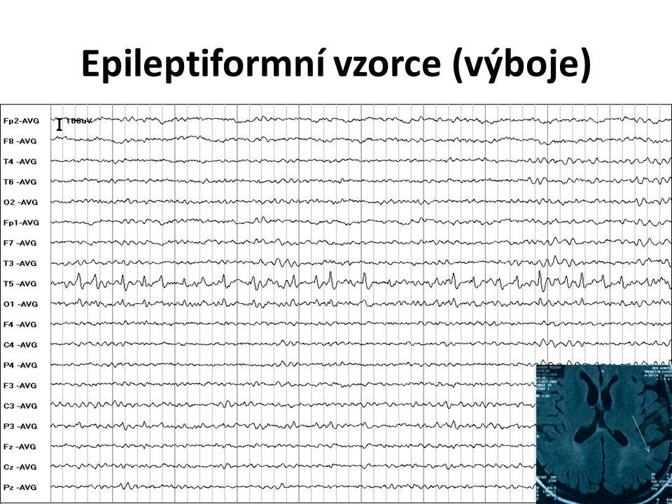 Epileptiformní vzorce (výboje)