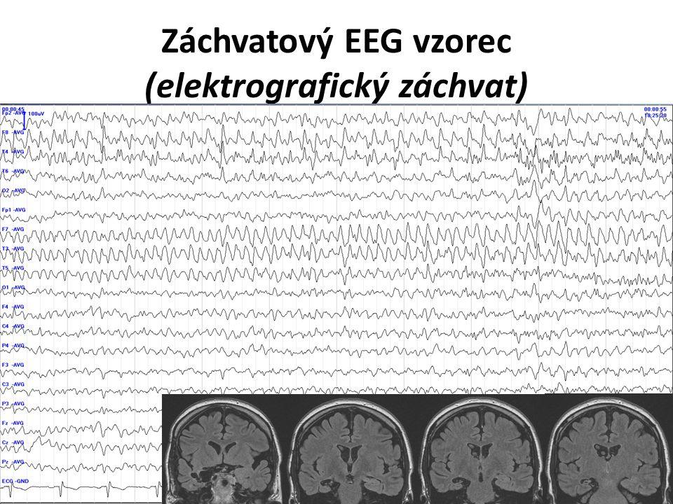 Záchvatový EEG vzorec (elektrografický záchvat)