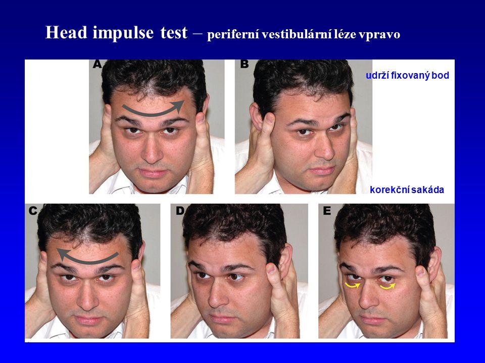 Head impulse test – periferní vestibulární léze vpravo
