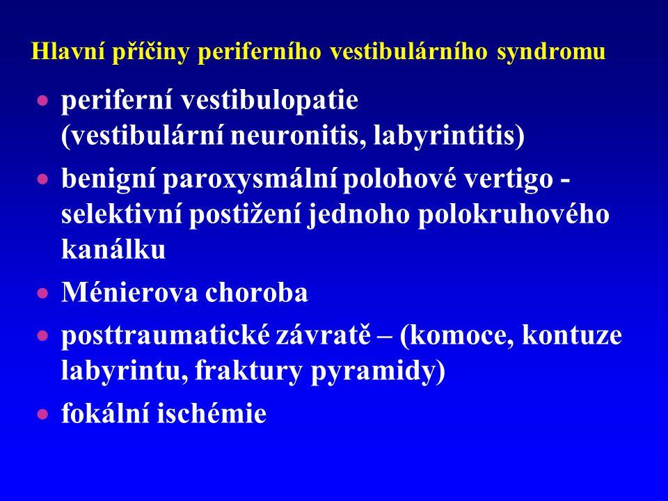 Hlavní příčiny periferního vestibulárního syndromu