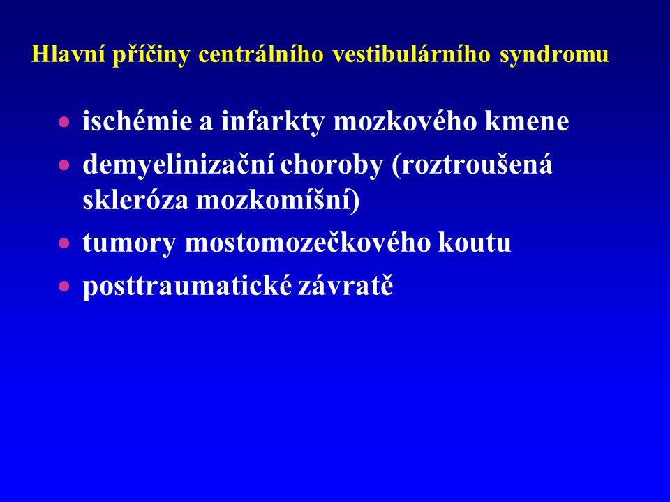 Hlavní příčiny centrálního vestibulárního syndromu