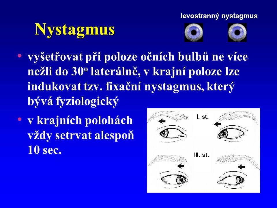 levostranný nystagmus