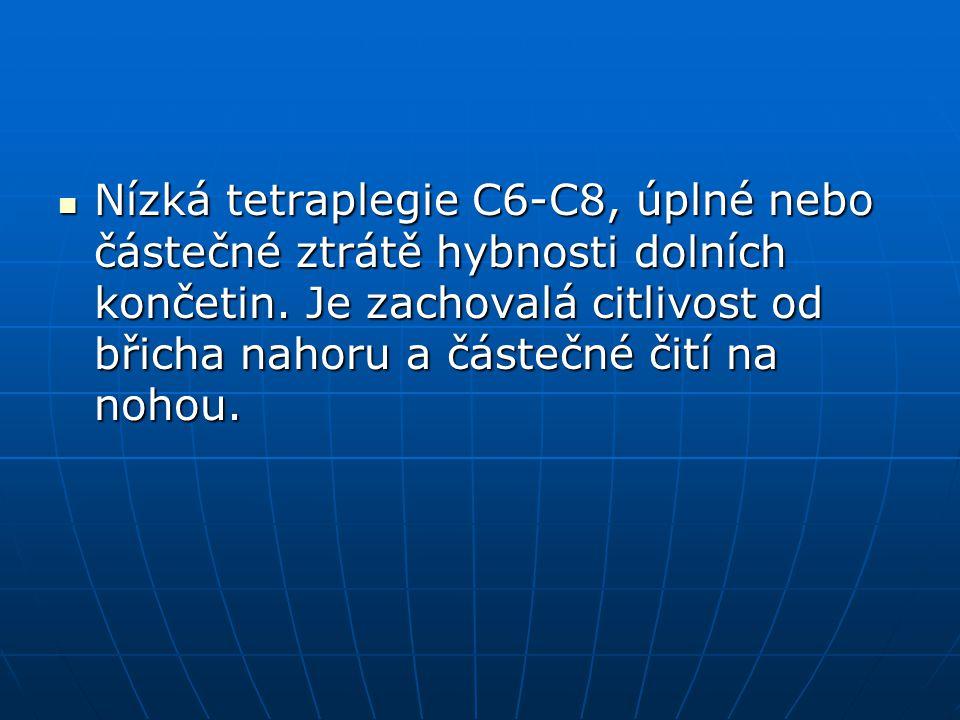 Nízká tetraplegie C6-C8, úplné nebo částečné ztrátě hybnosti dolních končetin.