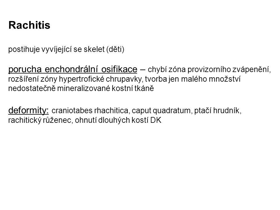 Rachitis postihuje vyvíjející se skelet (děti)
