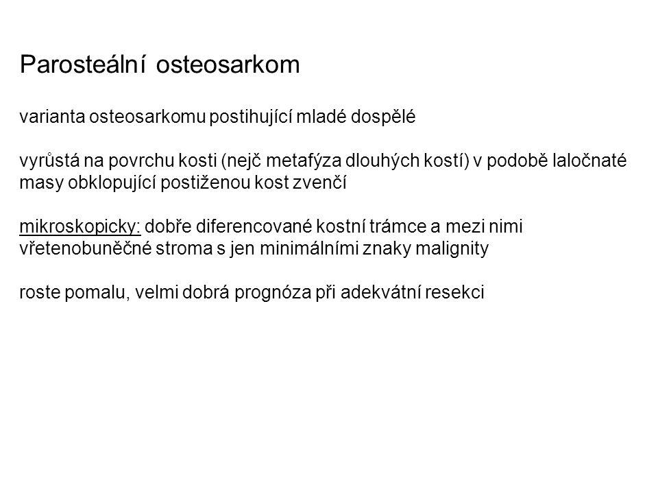 Parosteální osteosarkom