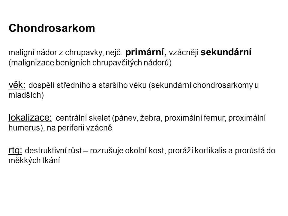 Chondrosarkom maligní nádor z chrupavky, nejč. primární, vzácněji sekundární (malignizace benigních chrupavčitých nádorů)