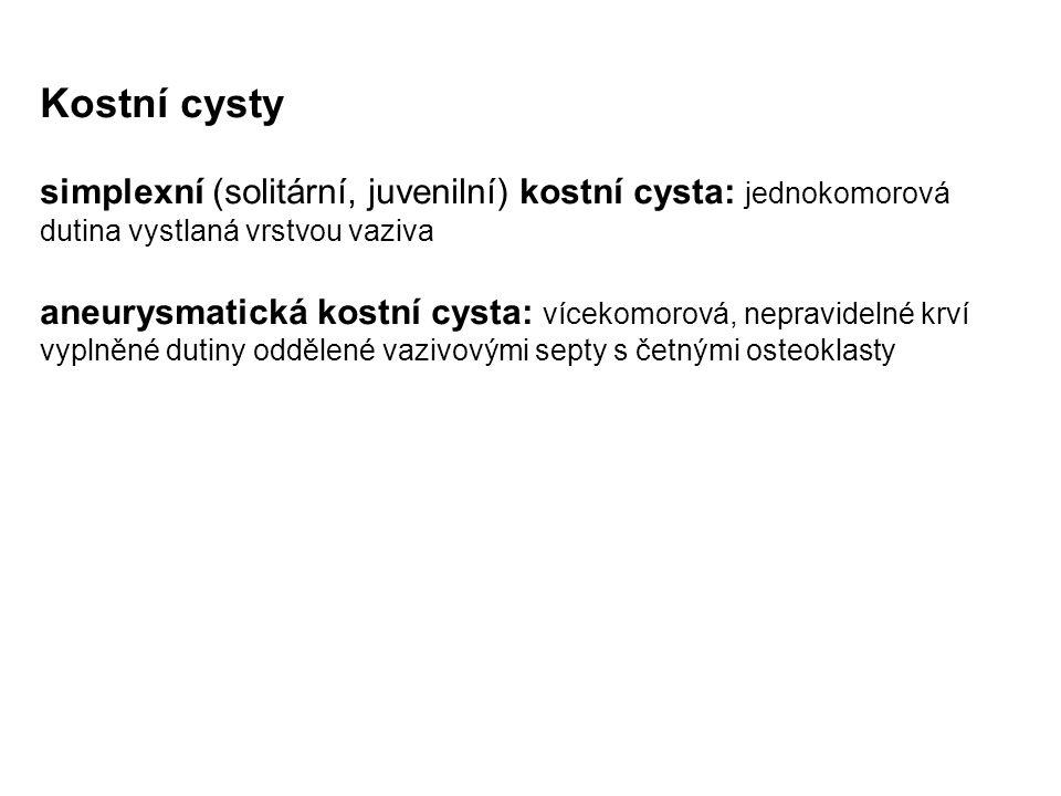 Kostní cysty simplexní (solitární, juvenilní) kostní cysta: jednokomorová dutina vystlaná vrstvou vaziva.