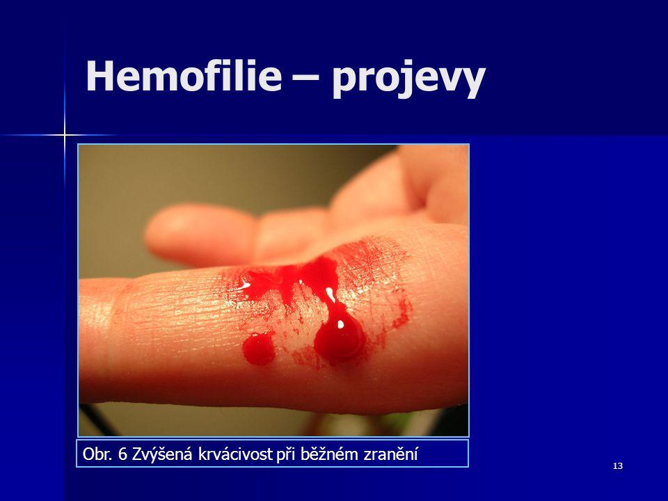 Hemofilie – projevy Obr. 6 Zvýšená krvácivost při běžném zranění