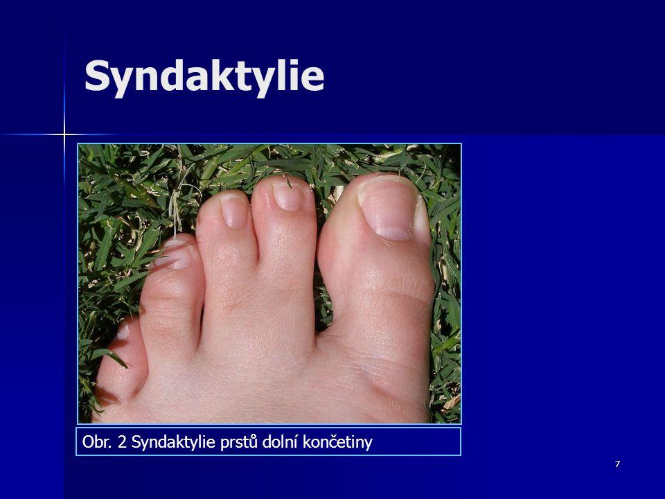 Syndaktylie Obr. 2 Syndaktylie prstů dolní končetiny