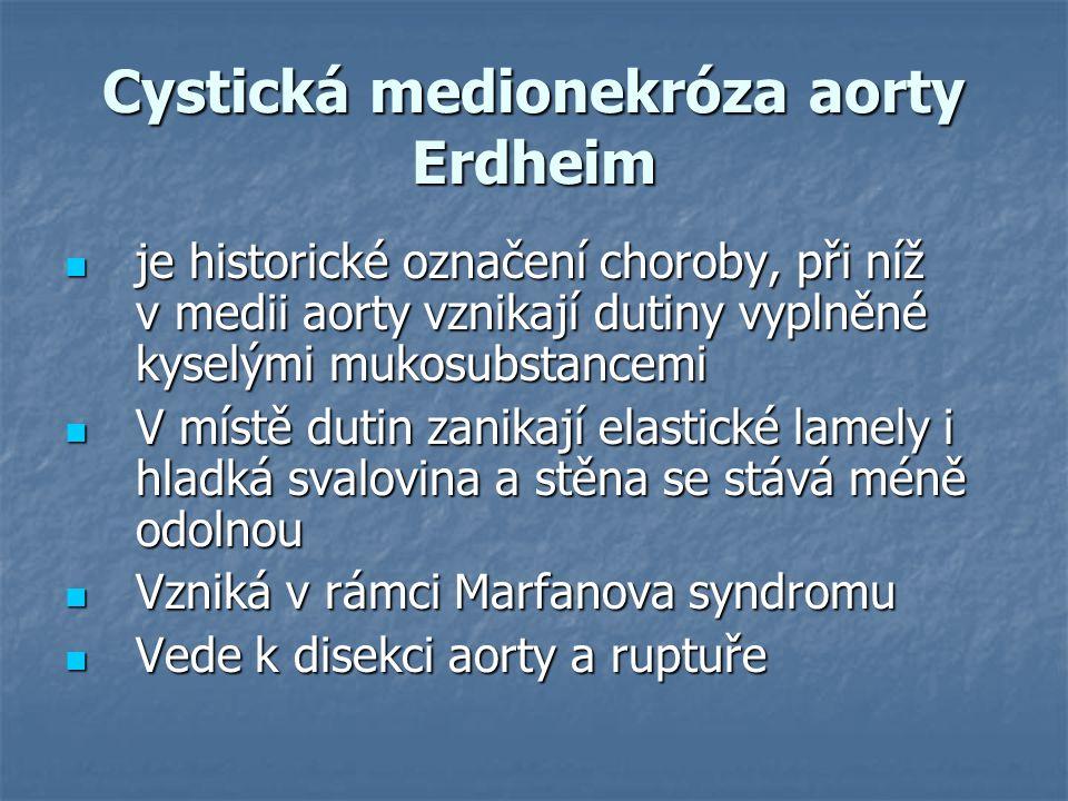 Cystická medionekróza aorty Erdheim
