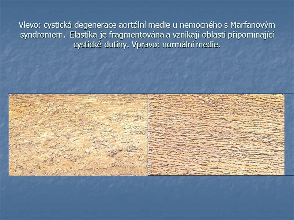 Vlevo: cystická degenerace aortální medie u nemocného s Marfanovým syndromem.