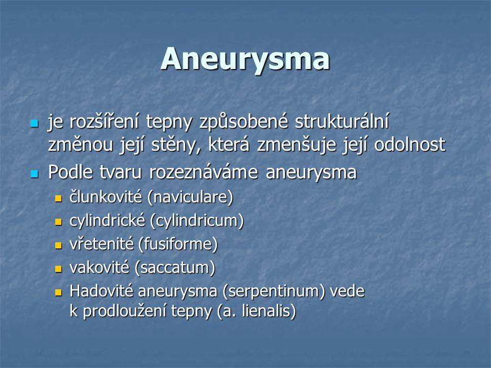 Aneurysma je rozšíření tepny způsobené strukturální změnou její stěny, která zmenšuje její odolnost.