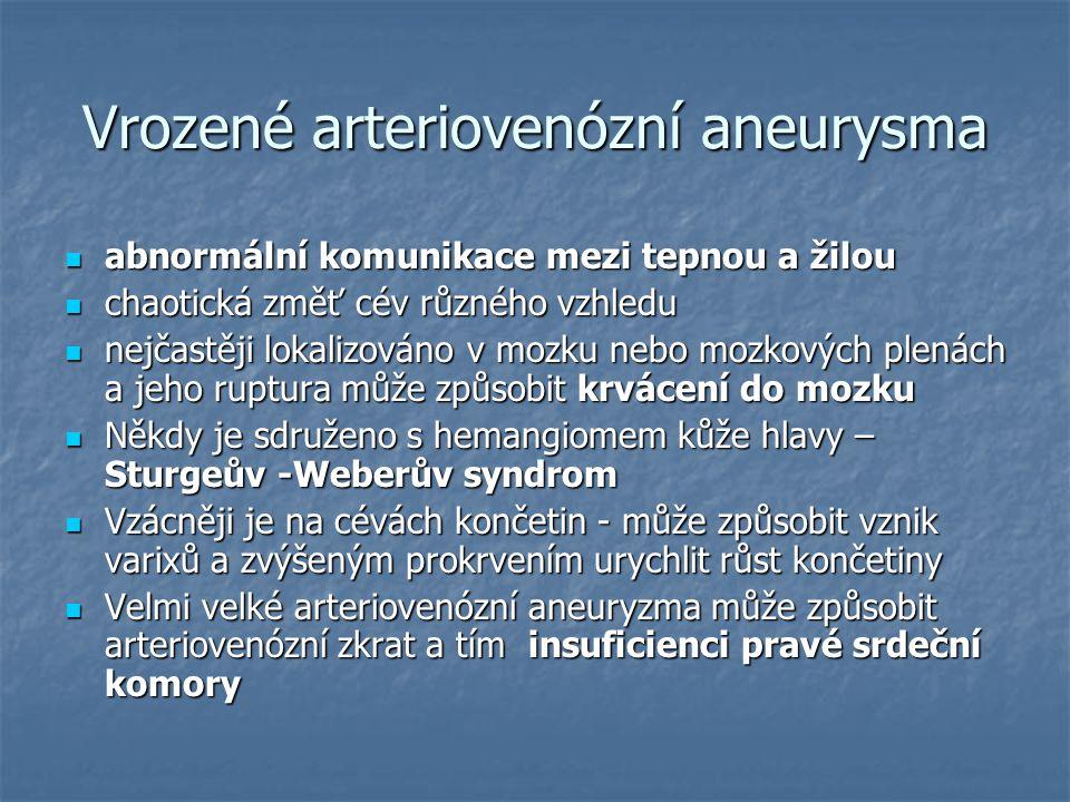 Vrozené arteriovenózní aneurysma
