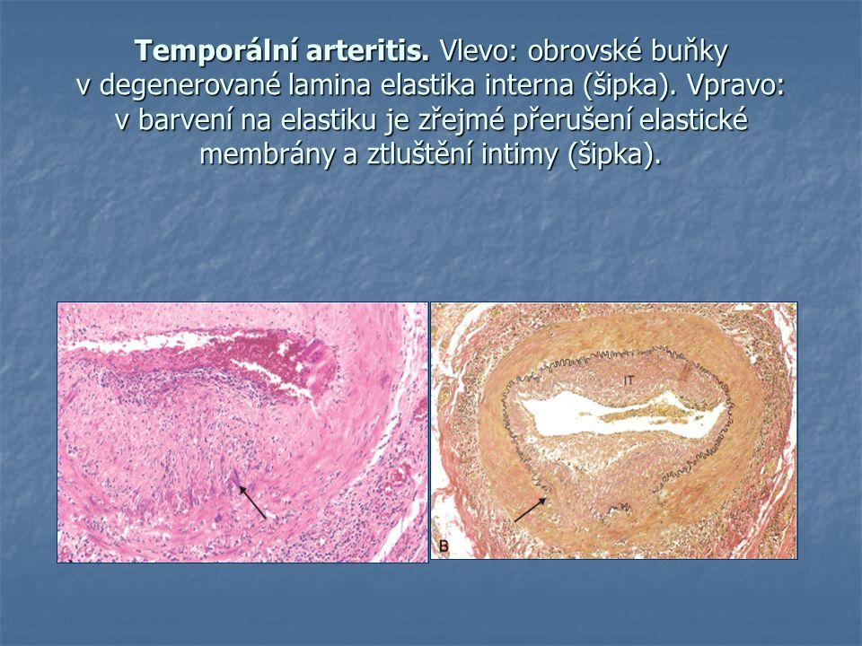 Temporální arteritis. Vlevo: obrovské buňky v degenerované lamina elastika interna (šipka).