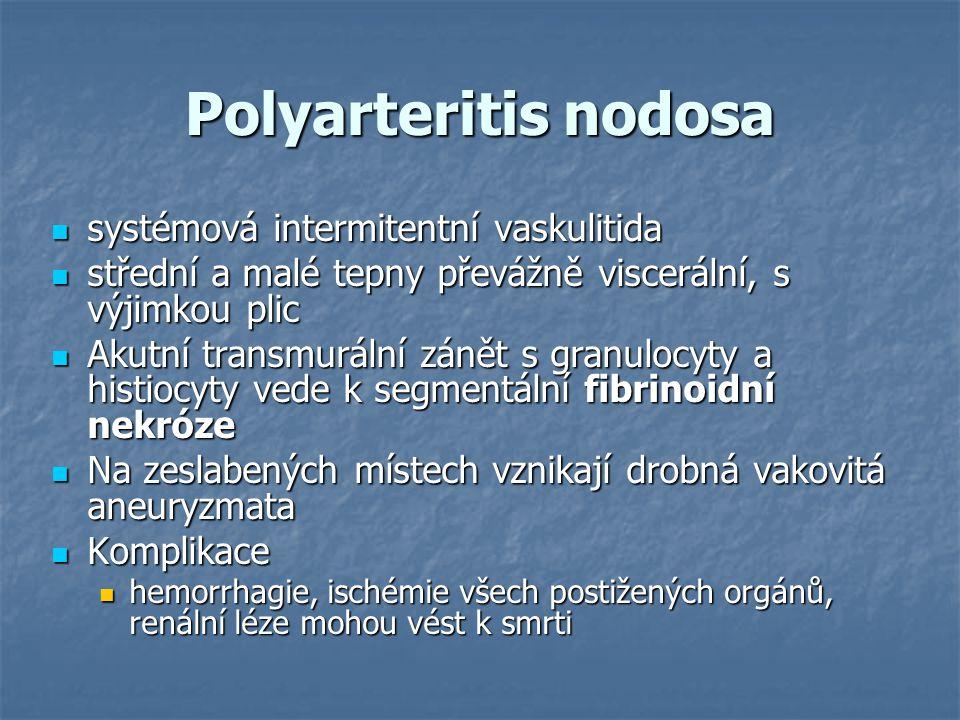 Polyarteritis nodosa systémová intermitentní vaskulitida