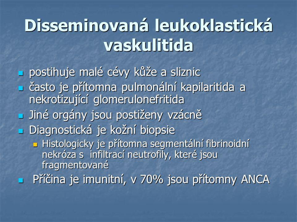 Disseminovaná leukoklastická vaskulitida