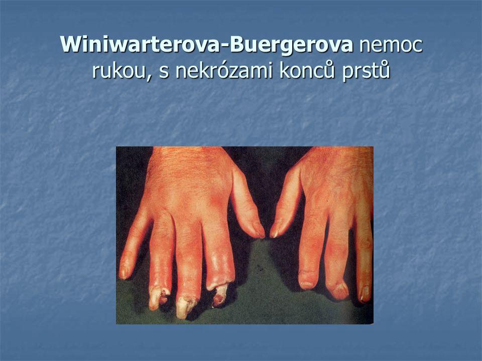 Winiwarterova-Buergerova nemoc rukou, s nekrózami konců prstů