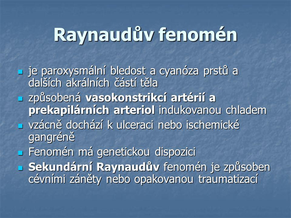 Raynaudův fenomén je paroxysmální bledost a cyanóza prstů a dalších akrálních částí těla.