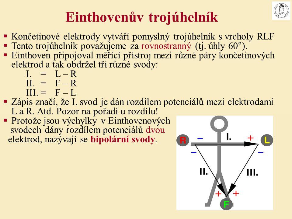 Einthovenův trojúhelník