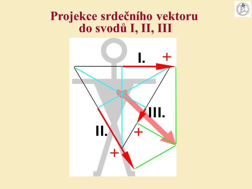 Projekce srdečního vektoru